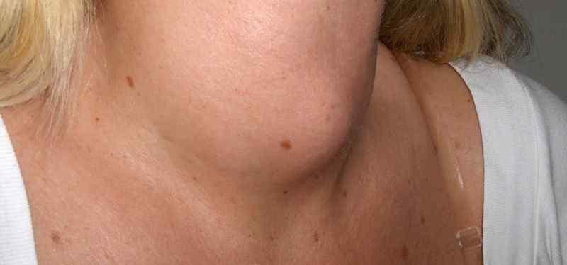 Ashwagandha for Thyroid